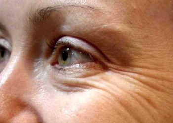 Facts Causes and Forms of Wrinkles You Should Know